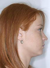 marisa_profile_after