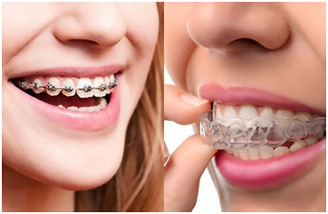 Braces vs. Invisalign—Which is Right for You? | Hoagburg Orthodontics